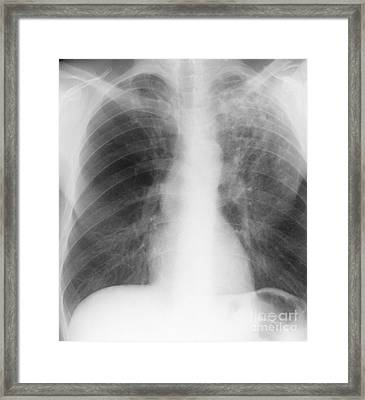 Old And New Tuberculosis, X-ray Framed Print