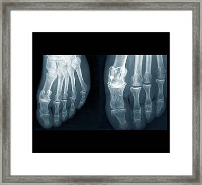 Osteoarthritis Of The Foot Framed Print