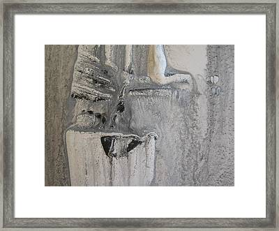 Osteoarthritis Framed Print