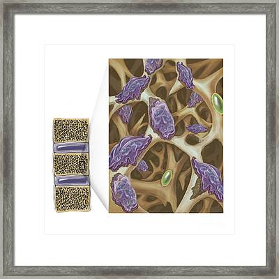 Osteoclasts Eroding Bone Framed Print