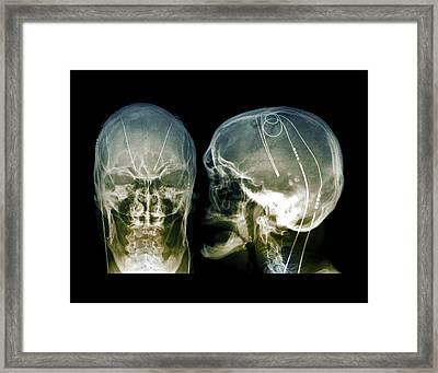 Parkinson's Brain Pacemaker Framed Print