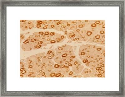 Peripheral Nerve Framed Print