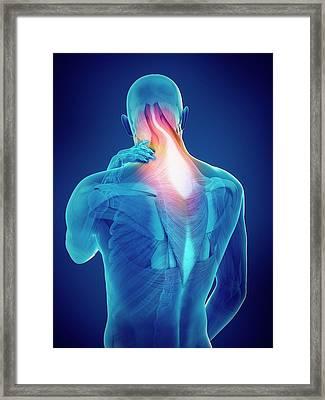Person With Neck Pain Framed Print by Sebastian Kaulitzki/science Photo Library