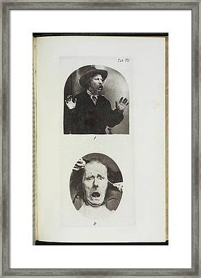 Photographs By Dr Duchenne Framed Print by British Library