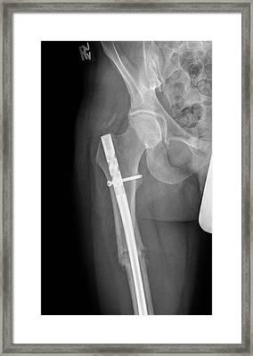 Pinned Femur Fracture Framed Print by Kaj R. Svensson