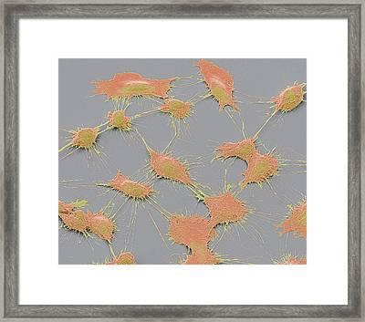 Prostate Cancer Cells Framed Print by Steve Gschmeissner