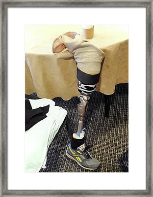 Prosthetic Leg Framed Print