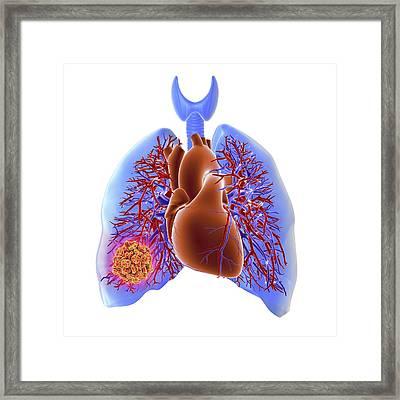 Pulmonary Embolism Framed Print by Alfred Pasieka