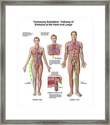 Pulmonary Embolism, Pathway Of Embolus Framed Print by Stocktrek Images