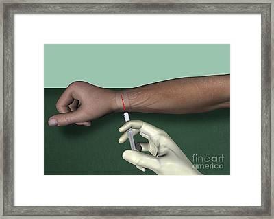 Radial Nerve Wrist Block, Artwork Framed Print by D & L Graphics