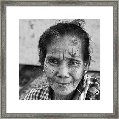 Ready For Eye Surgery Framed Print by Jerry Nelson