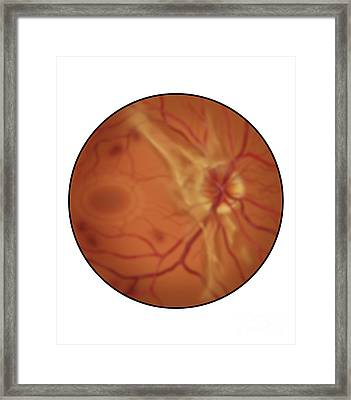 Retina With Advanced Diabetic Framed Print
