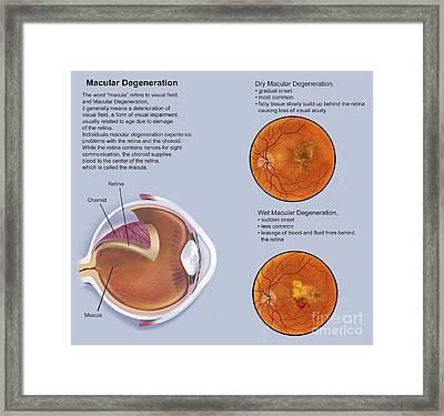 Retina With Macular Degeneration Framed Print