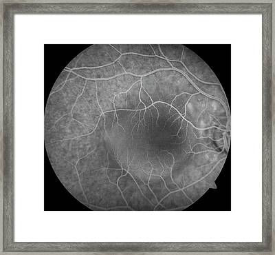 Retinal Pigment Epithelial Detachment Framed Print by Mid Essex Hospital Services Nhs Trust