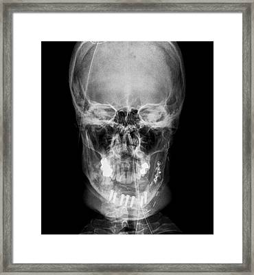 Road Accident Facial Trauma Framed Print