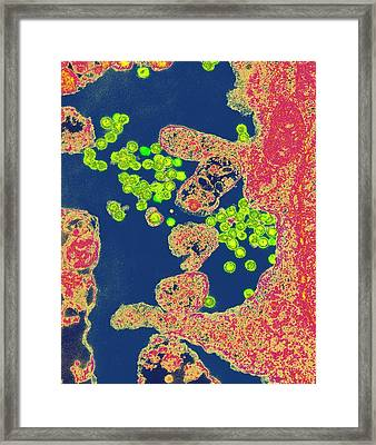 Rous Sarcoma Virus Infection Framed Print by Dr Gopal Murti