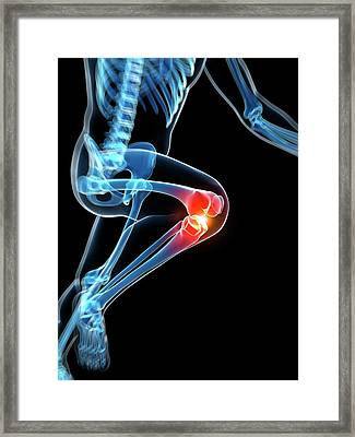 Runner's Knee Joint Framed Print