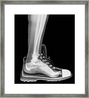 Running Shoe X-ray Framed Print by Photostock-israel