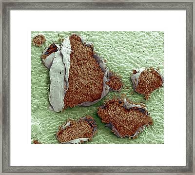 Rust Fungus On A Bellflower Leaf Framed Print