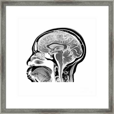 Sagittal Mri Of The Brain Framed Print by Medical Body Scans