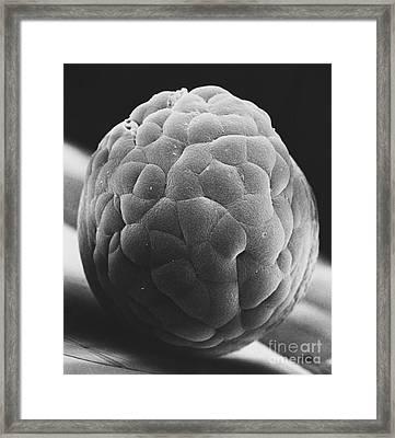 Sem Of Madaka Embryo Framed Print