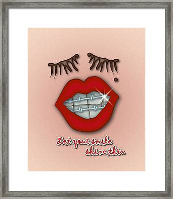 Shiny Braces Red Lips Mole And Thick Eyelashes Framed Print