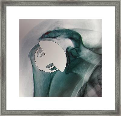 Shoulder Replacement Framed Print by Zephyr