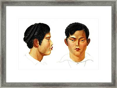 Siamese Man Framed Print by Collection Abecasis