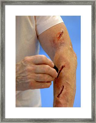 Simulated Arm Lacerations Framed Print by Public Health England