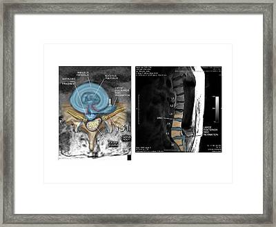 Slipped Disc In The Lumbar Spine Framed Print