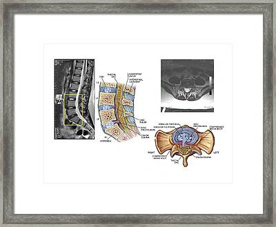 Slipped Discs In The Lumbar Spine Framed Print by John T. Alesi