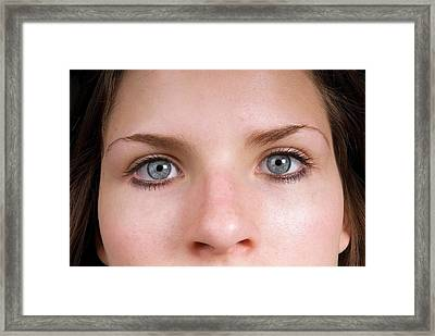 Small Pupils In Bright Light Framed Print by Trevor Clifford Photography