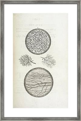 Sperm And Blood Microscopy Framed Print