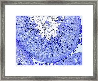 Sperm Production Framed Print by Microscape