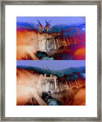 Spinal Compression Fractures In Surgery Framed Print by Zephyr