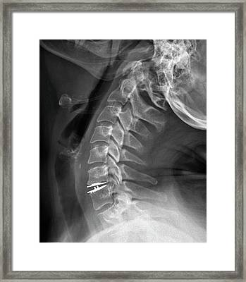 Spinal Disc Implant Framed Print by Zephyr