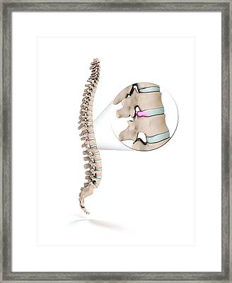 Spinal Disc Prolapse Framed Print by Mikkel Juul Jensen