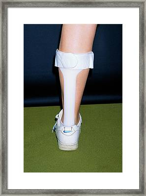 Splint To Aid Foot-drop Framed Print by Dr P. Marazzi/science Photo Library