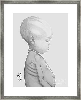Starved African Girl Framed Print by Justin Moore