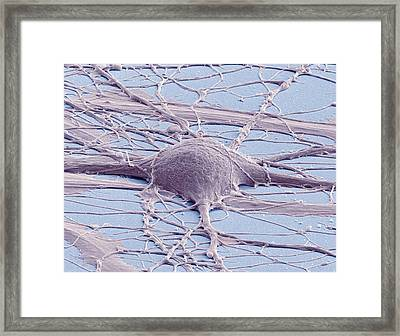 Stem Cell-derived Neuron Framed Print