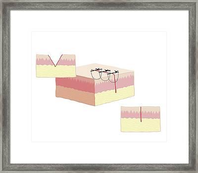 Stitched Cut Framed Print