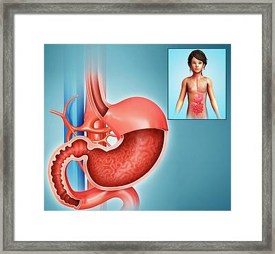 Stomach And Duodenum Framed Print by Pixologicstudio/science Photo Library
