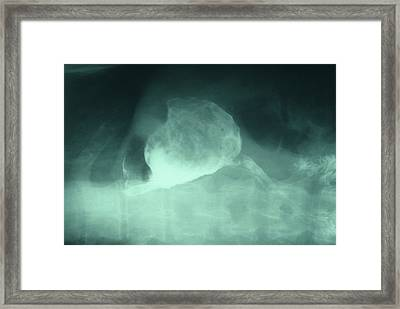 Stomach Cancer After Surgery Framed Print