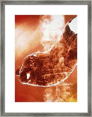 Stomach Cancer Framed Print by Gjlp