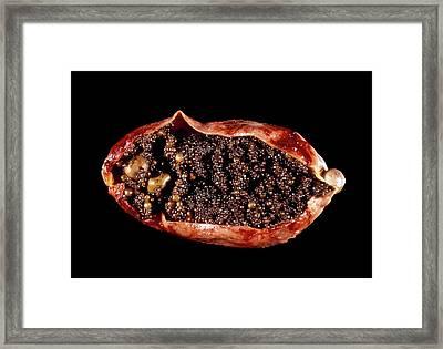 Stones In The Gallbladder Framed Print by Cnri