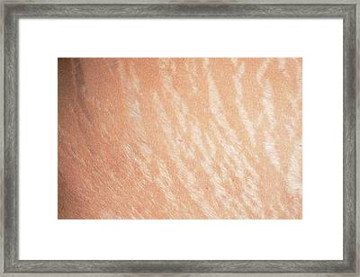 Stretch Marks Framed Print