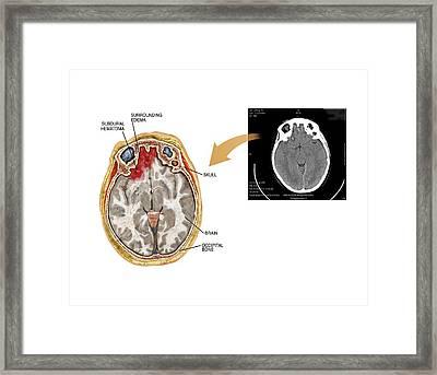 Subdural Haematoma Framed Print