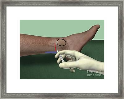 Sural Nerve Block, Artwork Framed Print