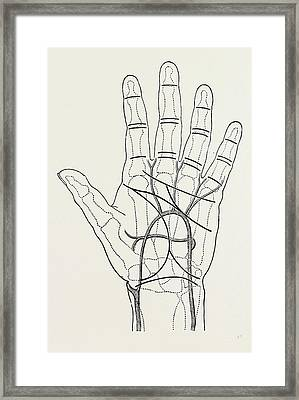 Surface Markings On The Palm Of Ffile Hand Framed Print by Litz Collection