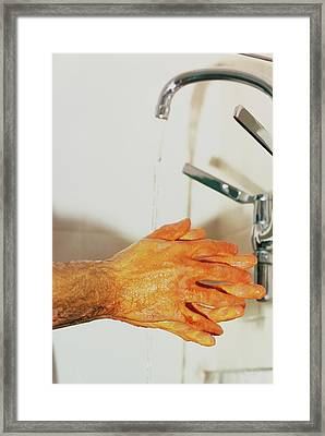 Surgeon Scrubbing Up Framed Print by Andrew Mcclenaghan/science Photo Library